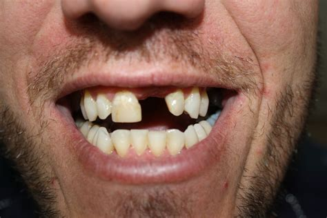 photos of people with teeth missing picture 9