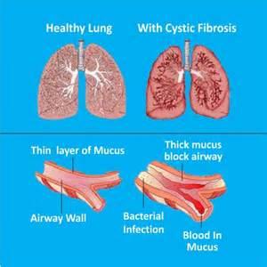hemorrhoid treatment uptodate picture 7