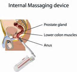 prostate milking procedure pictures picture 5