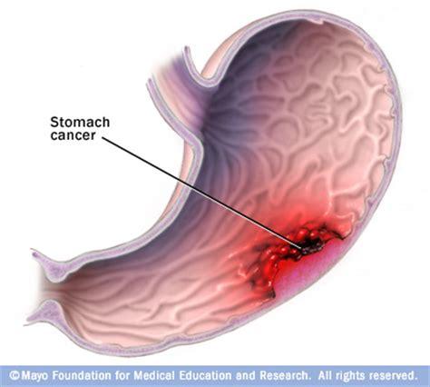 intestinal lymphoma picture 6