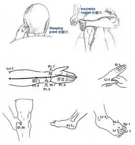 acupuncture for insomnia picture 19
