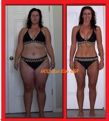 weight loss with hcg shots and hoodia picture 3