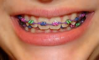 colored braces teeth picture 6