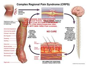 are side sches & leg cramps symptoms of picture 8