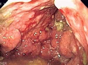 h-palla intestinal bacteria picture 15