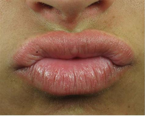 lip warts picture 11
