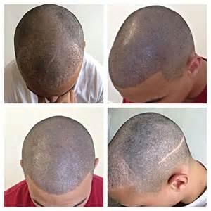 alternative short hair picture 10