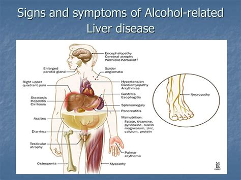 signs and symptoms liver failure picture 2