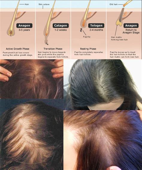 weight loss hair loss picture 5