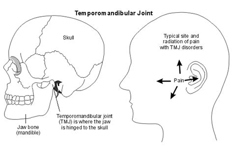 joint disorders picture 10