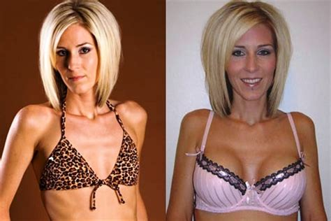 free forced breast implants stories picture 9