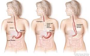 gastrointestinal cancer picture 9