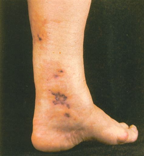 about skin cancer picture 5