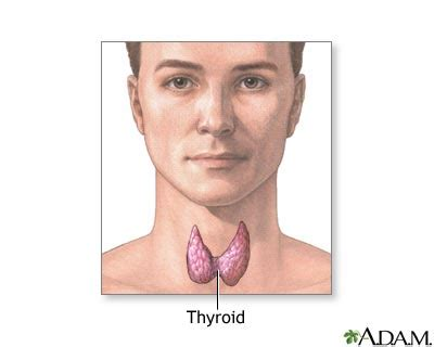 can goiter grow on thyroid hormone picture 8