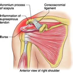 can large breast cause tendonitis in shoulder picture 9