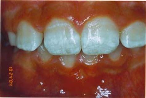 discolored teeth enamel effacia picture 9
