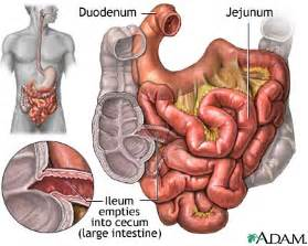 what are gestroitestinal stromal of the small intestinal picture 3