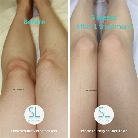 laser hair removal ct picture 2