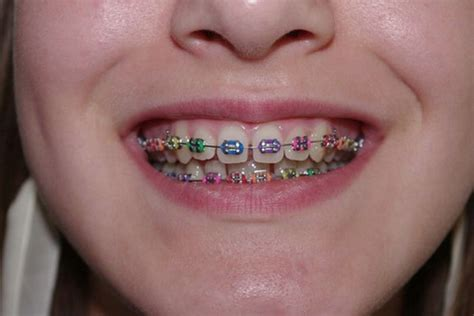 childrens braces for teeth picture 10