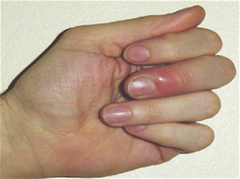 nail fungus from artificial nails picture 1