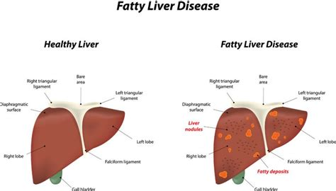 symptoms of an enlarged liver picture 1