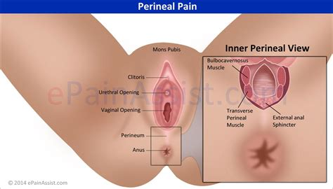abdominal pain after bowel movement picture 6