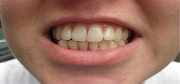 discolored teeth picture 15