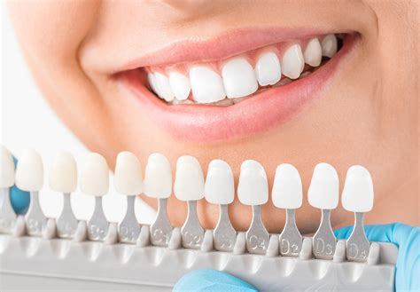 cheapest cosmetic teeth picture 1