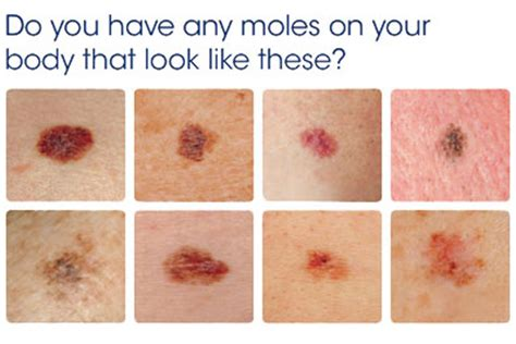 early signs of skin cancer picture 9