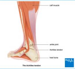 leg muscle pain picture 5