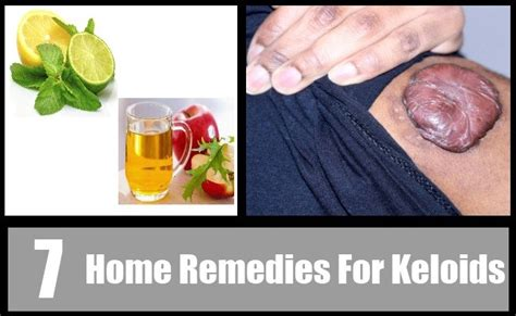 ayurvedic treatment for keloids picture 2