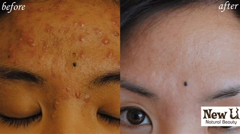 herbalist for acne las vegas picture 1