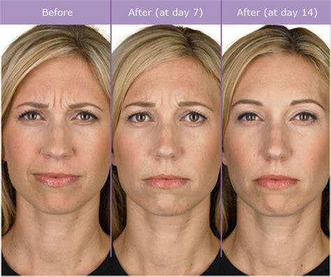 acne scar removal picture 9