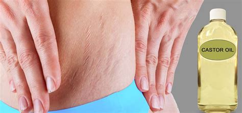stretch marks lifting weights to heal them picture 14