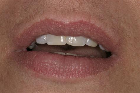 calcium deposit on lip picture 1