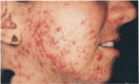 caffeine and cystic acne picture 1