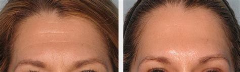 laser hair removal ny picture 9