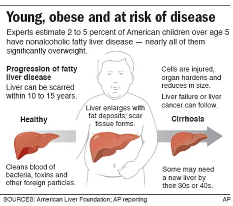 fatty liver syndrome picture 10