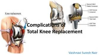 when do knee joint replacements get revised picture 3