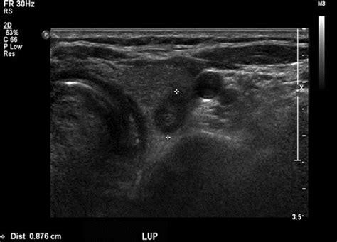 thyroid ultrasound heterogeneous echogenicity picture 3