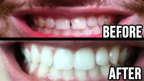 fixing gap in teeth picture 7