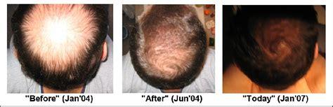 avodart on hair loss picture 1