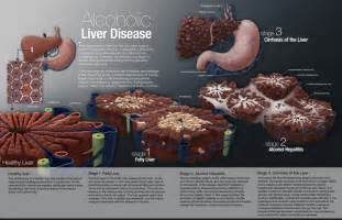 alcohol liver disease picture 11
