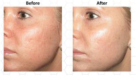 skin care md picture 9