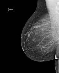 foonman small breast picture 2