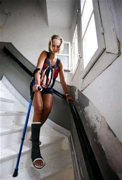 beautiful legs with sexy leg casts with high and crutches picture 12