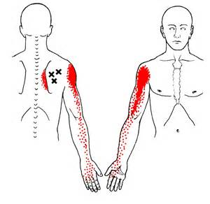 muscle ache joint pain picture 3