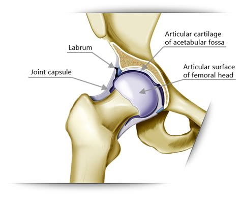 image of hip replacement joint picture 18
