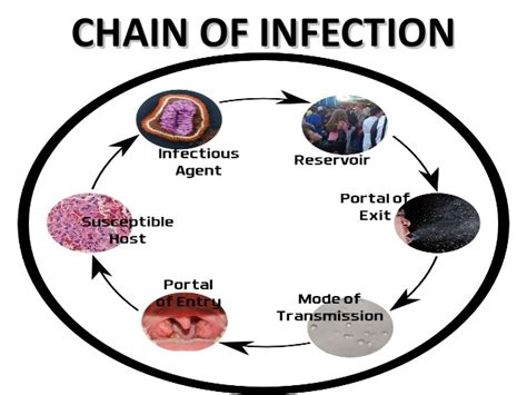 infection mrsa picture 2