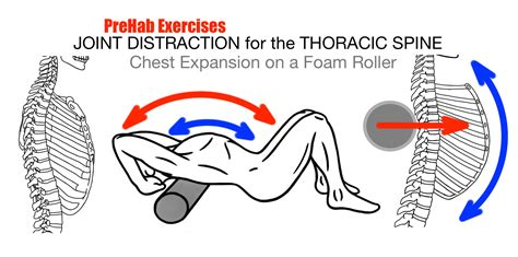 facet joint pain and stabilization picture 11